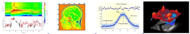 IGOR Pro 6: Scientific Graphing, Data Analysis, Image Processing Software